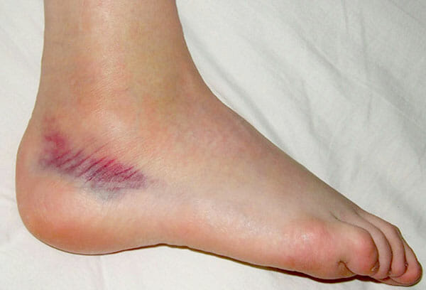 classic picture of ankle injury showing internal bleed.